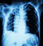 Tubercolosi polmonare Esame radiografico del torace: Giusta atelectasia del polmone immagine stock libera da diritti