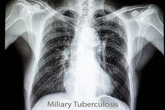 tubercolosi polmonare miliare fotografia stock libera da diritti