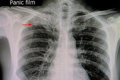 tubercolosi polmonare nel polmone superiore giusto immagini stock libere da diritti