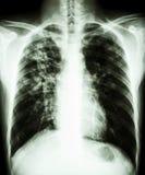 Tuberculose pulmonaire photographie stock libre de droits