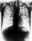Tuberculose pulmonaire photographie stock