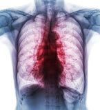 Tuberculose pulmonaire L'interstitiel d'exposition de radiographie de la poitrine de film infiltrent les deux le poumon dû à l'in photos stock