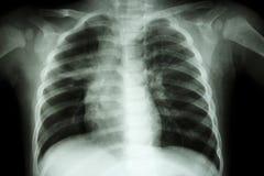 Tuberculose pulmonaire (radiographie de la poitrine de l'enfant : montrez l'infiltration inégale au poumon moyen droit) photo libre de droits
