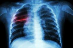 Tuberculose pulmonaire (radiographie de la poitrine de l'enfant : montrez l'infiltration inégale au poumon moyen droit) image stock