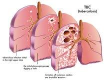 Tuberculosis stock illustration