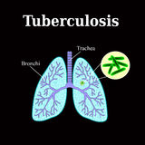 Tuberculosis. Lung disease. Tubercle bacillus. Vector illustration on a black background Stock Photography