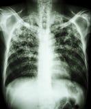 Tuberculosis pulmonar Foto de archivo libre de regalías