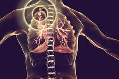 Tuberculosis treatment and prevention concept. 3D illustration showing secondary tuberculosis in lungs, apical nodule Stock Image