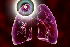Tuberculosis treatment and prevention concept. 3D illustration showing secondary tuberculosis in lungs, apical nodule Royalty Free Stock Photo