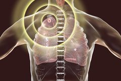Tuberculosis treatment and prevention concept. 3D illustration showing secondary tuberculosis in lungs, apical nodule Royalty Free Stock Photos