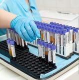 Tubes à essai avec le sang dans le laboratoire Photos libres de droits