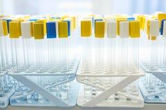 Tubes à essai médical en gros plan Photo stock