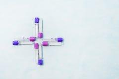 Tubes à essai pour le diagnostic de laboratoire, pour des analyses de sang Images libres de droits