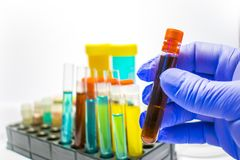 Tubes colorés d'essai en laboratoire, analyses de sang de biochimie, analyse d'urine, tube à essai, analyse médicale, concept de  photo libre de droits