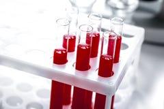 Tubes de verre avec la prise de sang dans le support personne images stock