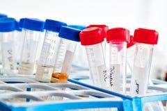 Tubes en plastique avec le diluant photos stock