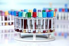 Tubi del sangue con le etichette in vassoio circolare Fotografie Stock