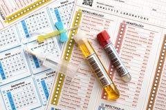 Tubi di sangue e campioni di urina per analisi e rapporto e caloria immagine stock