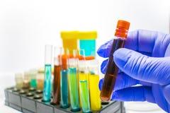 Tubi variopinti della prova di laboratorio, analisi del sangue di biochimica, esame delle urine, provetta, analisi medica, concet fotografia stock libera da diritti
