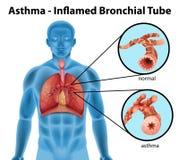 tubo bronchiale Asma-infiammato Fotografia Stock Libera da Diritti