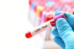 Tubo da amostra de sangue para a desidrogenase do lactato ou o teste de LDH imagens de stock royalty free