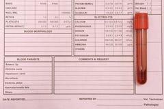 Tubo de ensayo de la sangre en fondo rosado Fotografía de archivo libre de regalías