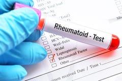 Tubo de la muestra de sangre para la prueba reumatoide del factor fotografía de archivo libre de regalías