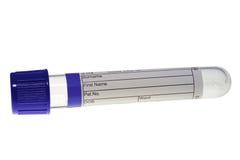 Tubo de prueba con el enchufe azul imagenes de archivo