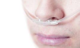 Tubo dell'ossigeno sul fronte di un paziente criticamente malato Fotografie Stock Libere da Diritti