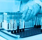 Tubos de ensaio com sangue para a análise Foto de Stock Royalty Free