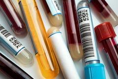 Tubos de ensaio no laboratório Fotos de Stock