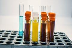 Tubos de ensayo coloridos del laboratorio, análisis de sangre de la bioquímica, análisis de orina, tubo de pruebas, análisis médi Fotos de archivo libres de regalías