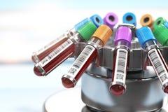 Tubos de ensayo de la sangre en centrifugadora Preparación del plasma en h médico foto de archivo libre de regalías