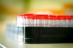 Tubos de examen médico para el análisis de la sangre Fotos de archivo