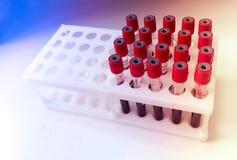 Tubos de la muestra de sangre para la prueba de laboratorio imagenes de archivo