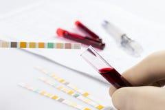 Tubos de prueba con sangre imagen de archivo