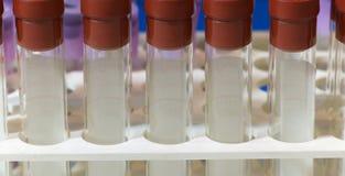 Tubos de prueba para las muestras de sangre Imagen de archivo libre de regalías