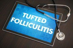 Tufted folliculitis (cutaneous disease) diagnosis medical concep. T on tablet screen with stethoscope Royalty Free Stock Photography