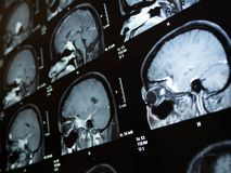 Tumeur cérébrale de rayon du film X photos libres de droits