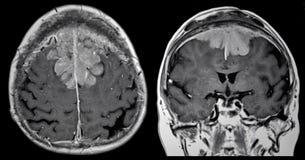 Tumeur cérébrale, IRM photo libre de droits