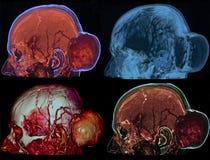 Tumeur d'os du crâne, CT Photos libres de droits