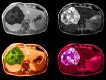 Tumeur de foie, M. image photos stock