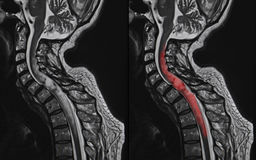 Tumeur de moelle épinière, IRM photo libre de droits