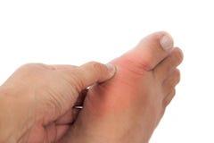 Tumma att trycka på mot den svullna gikten förvärrade foten Arkivbild