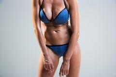 Tummy cellulite. poor posture. Stock Images