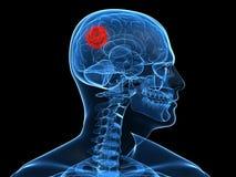 Tumor cerebral ilustración del vector