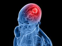 Tumor cerebral libre illustration