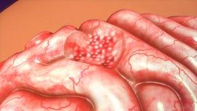 Tumor cerebral Imagem de Stock