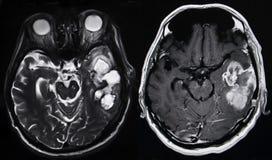 Tumor cerebral, MRI Imagem de Stock
