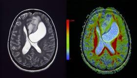 Tumor cerebral, MRI Imágenes de archivo libres de regalías